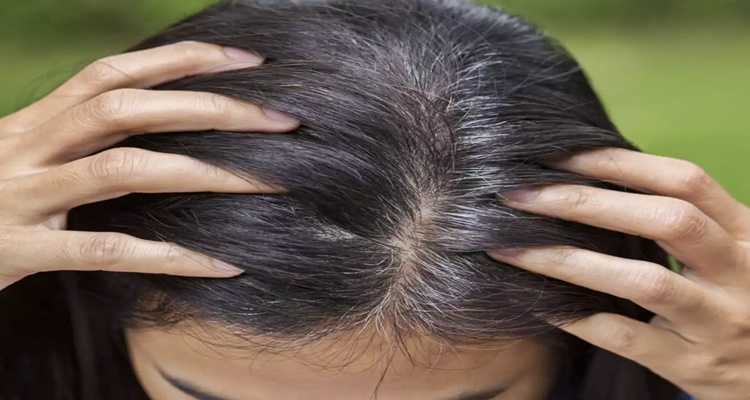 Gray Hair, Effects Of Stress
